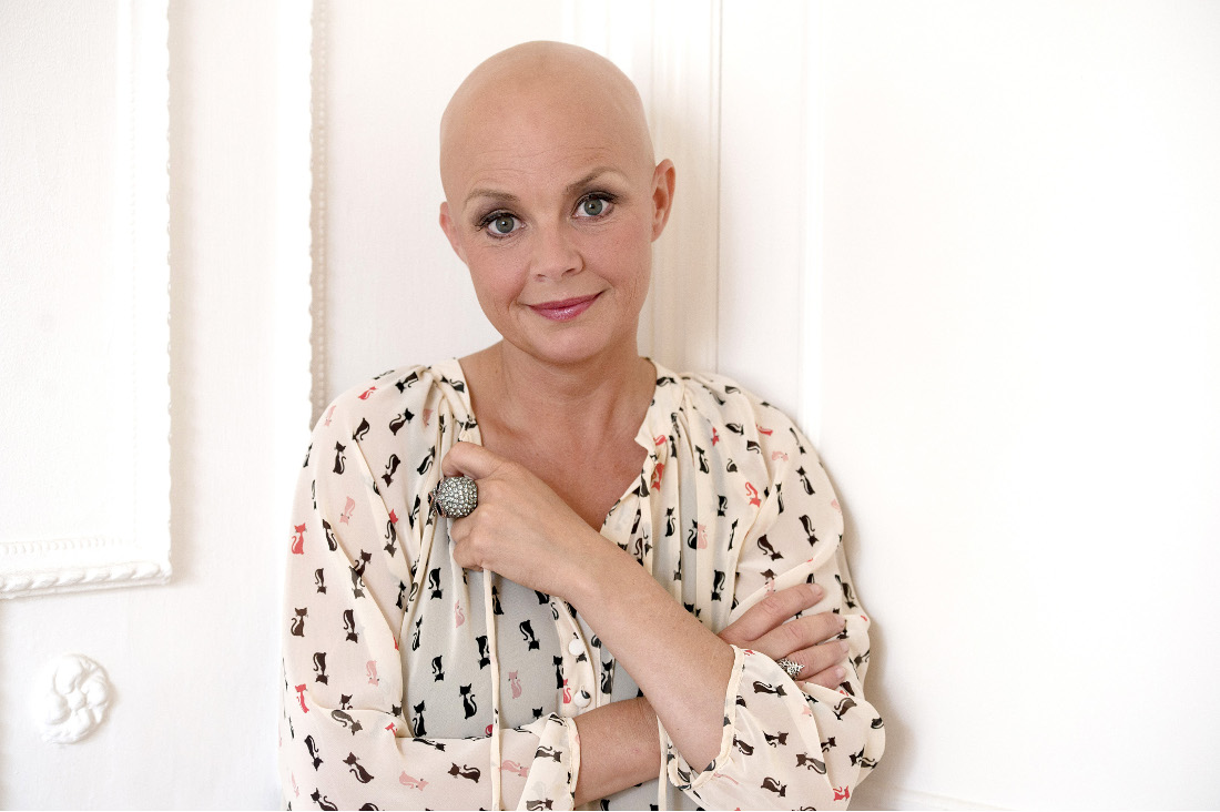 Enjoy Celebrity Radio's Gail Porter Life Story Interview ~ Alopecia, FHM & Life Story…. In the late 1990s Gail Porter began to pose for photos […]